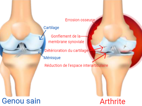 Affection inflammatoire des articulations : l'arthrite
