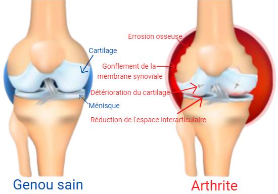 Genou sain vs arthrite