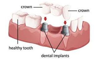 Implant Bridge in Costa Rica