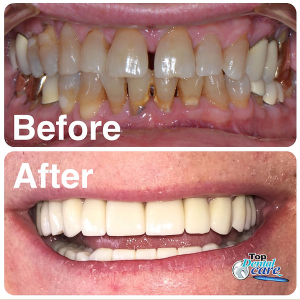Before and after Costa Rica Dentist