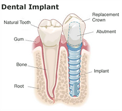 Dental Implant in Costa Rica