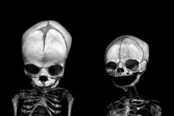 AnatomyReport_Human2_1213