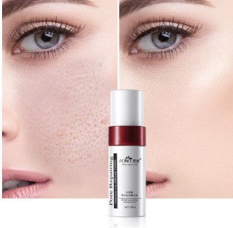Gilmore Beauty - Fonce Shrink Pores Face blackhead remover Salicylic acid Acne Treatment Serum Facial Oil control Serum Skin