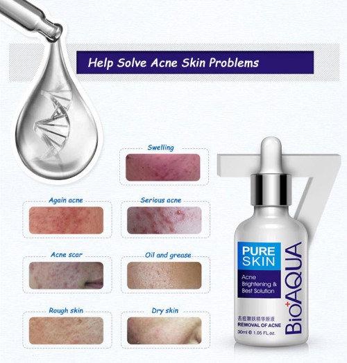 Gilmore Beauty - BIOAQUA Brand Skin Care Face Acne Treatment Acne Scar Removal Cream