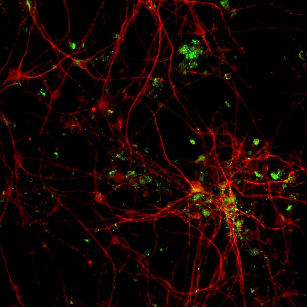 Representative picture of a primary culture of gabaergic neurons doubly immunolabeled with anti-MAP2 and anti-GAD67 antibodiesbaergiques MAP2 rouge GAD6