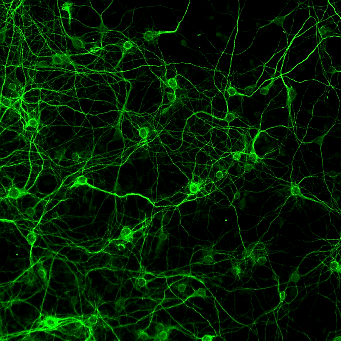 Representative picture of a primary culture of central neurons immunolabeled with anti-MAP2 antibody