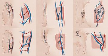 Arterialized Venous Flaps