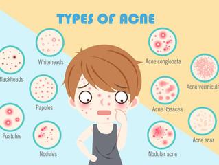 Acne Awareness Month