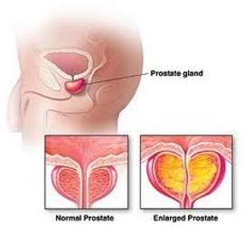 prostate-hyperplagia-acupuncture-denver-