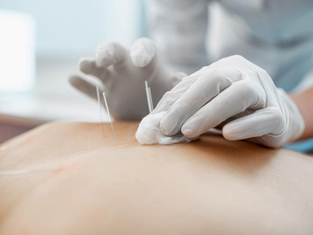 What Are The Benefits Of Acupuncture? How Often Should You Get Acupuncture To Receive Results?