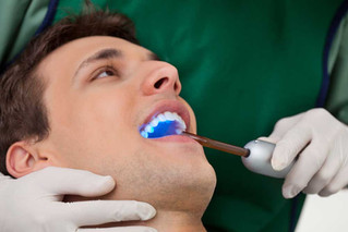 Dental Bonding & Filling