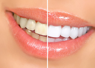 What is in-office teeth whitening?