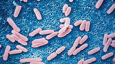 1. Définition et classification des microbes