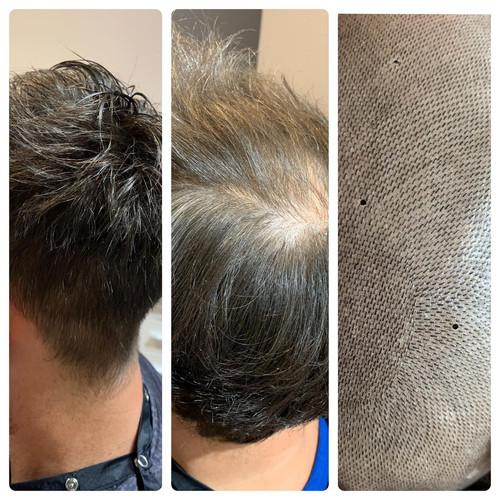 Men's hair replacement