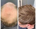 Non-surgical hair loss