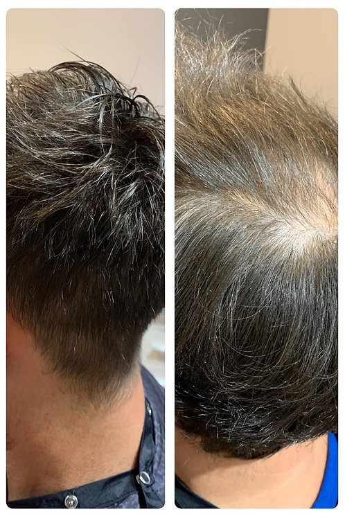 MENS HAIR REPLACEMENT SYSTEM COURSE.