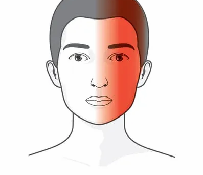 What Is The Cause To My Headaches?