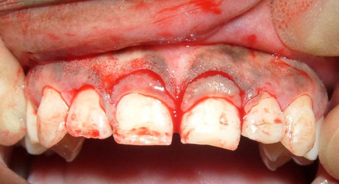 Crown Lengthening Course