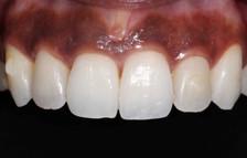Depigmentation Case