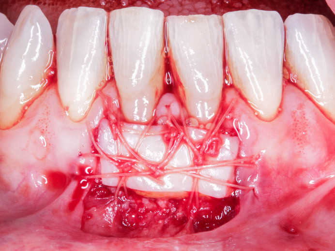 Placement of free gingival graft