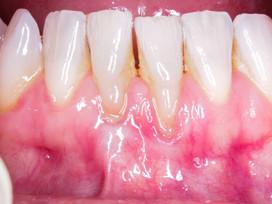 Pre-op pic of lower anterior teeth