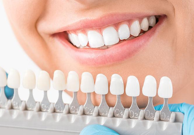 Ästhetische Zahnheilkunde in Sankt Augustin