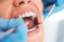 Professionelle Zahnreinigung in Sank Augustin