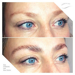 Brow Lift Kika.jpg