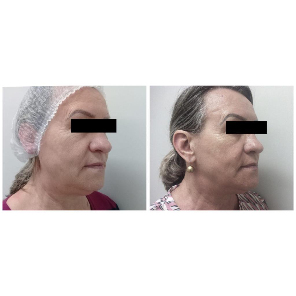 flacidez facial