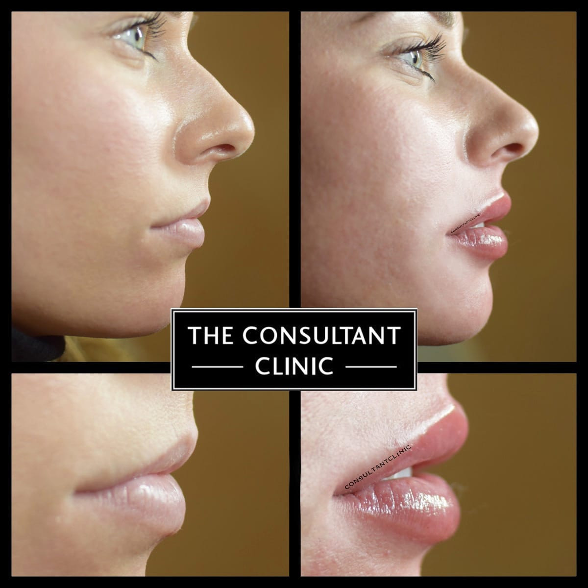 Home The Consultant Clinic London Lip Augmentation
