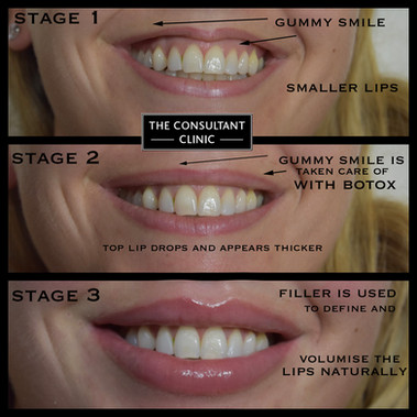 3 stages copy.jpg