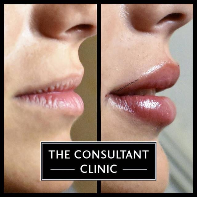 Lip Augmentation Theconsultantclinic