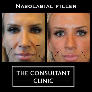 Nasolabials.jpg
