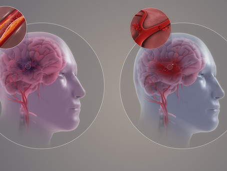 How to Prevent The First (and Next) Stroke