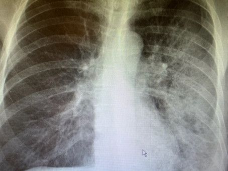 Case Presentation:  66 year old with persistent cough after 3 weeks ago