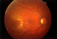 eye_diseases_and_cond_s5_macular_degener