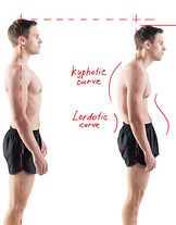 Image of man with bad posture due to kyphosis and lordosis