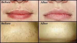 lip and chin wax at Passion Salon