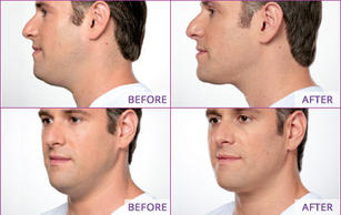 double-chin-injections-neck-fat.jpg