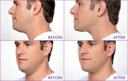 double-chin-injections-neck-fat