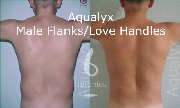 aqualyx_male_love_handles_flanks_before_