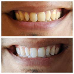 Body TLC Teeth Whitening