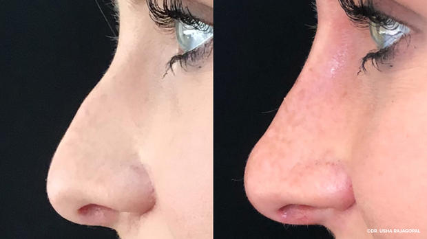 non surgical nose filler.jpg