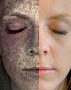 pigmentation.jpg