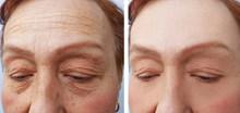 botox for antiaging.jpg