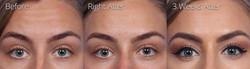 forehead pleats
