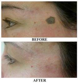 Mole Removal at Body TLC