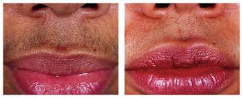 lip wax before and after at Passion