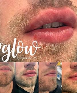 hyglowbodytlclincoln.jpg