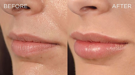 Lip-Fillers-Before-After-Gallery_edited.